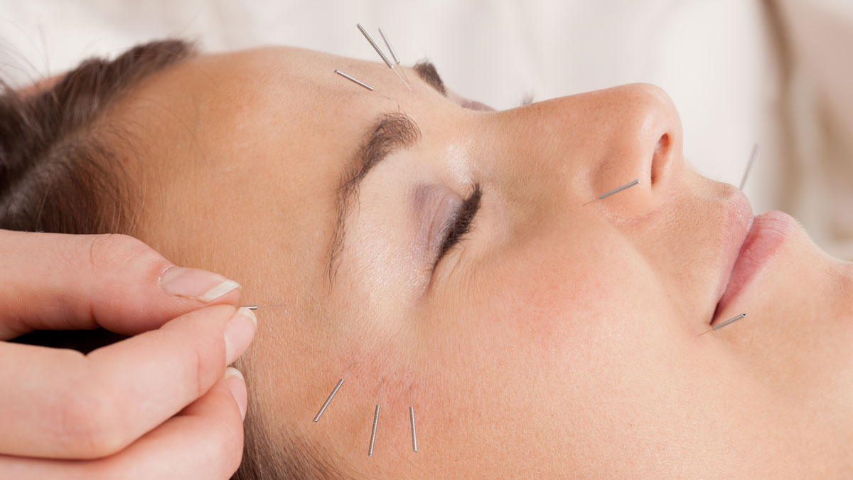 Cosmetic Facial Acupuncture Bundaberg